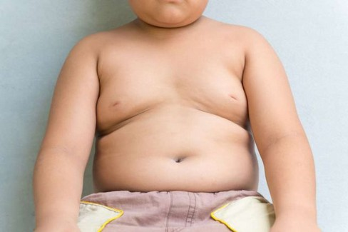 Ieri l'Obesity day. <span>Foto Scienza e Salute</span>