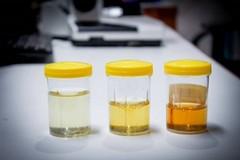 Il colore dell'urina può rivelare molto sulla tua salute