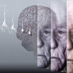 Alzheimer, l'Anthropos organizza un seminario