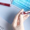 Impennata di contagi, 485 nuovi casi positivi in Puglia