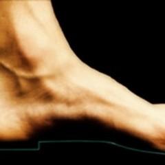 Traumi più comuni del piede dell'atleta (1^ parte)