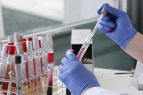 Coronavirus- test